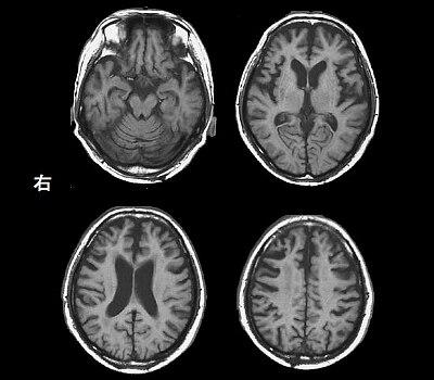 大脳 皮質 基底 核 変性 症 大脳皮質基底核変性症 (corticobasal
